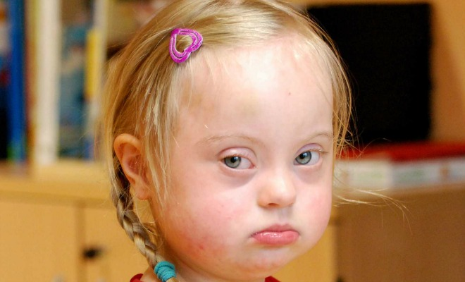 Syndrome Cat Eye Trisomie